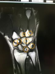 私の右手のMRI画像.jpg